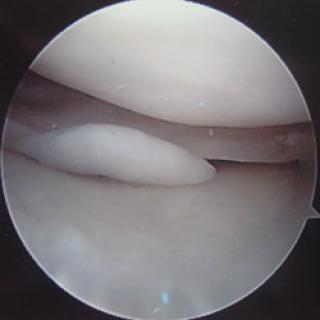 Flapscheur meniscus
