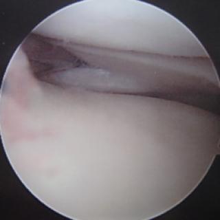 Gescheurde meniscus